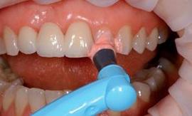Этапы чистки зубов