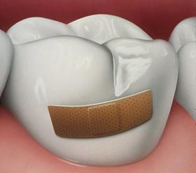 Дырки в зубах: что делать?