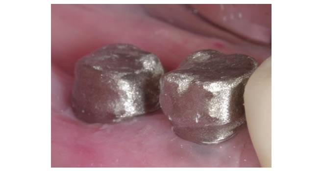 Коронки на жевательные зубы