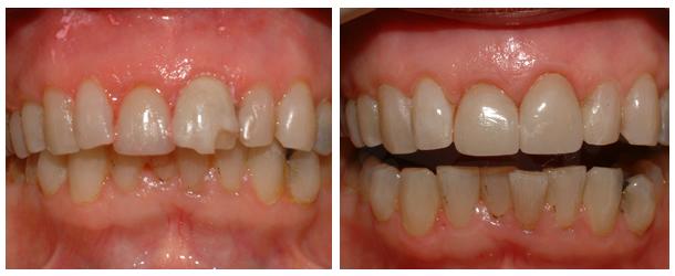 Коронки на передние зубы - фото 1
