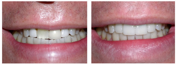 Коронки на передние зубы - фото 2