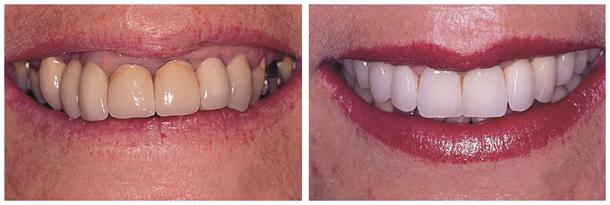 Коронки на передние зубы - фото 3
