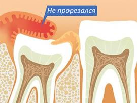 Когда лечить зуб мудрости?
